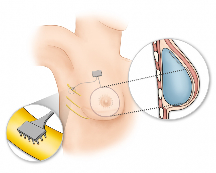 Schematic illustration of the Bionic Breast concept for a breast reconstructed using an implant.