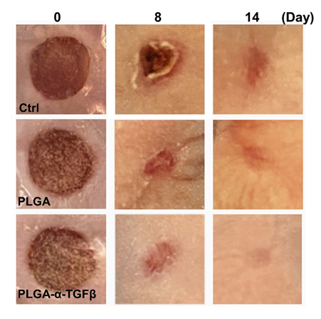 (The wounds in skin grafts were treated with PLGA capsules with or without TGFβ inhibitor in HA-NB hydrogel, or alginate hydrogel as control at different time points.)